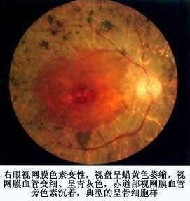视网膜色素变性.jpg